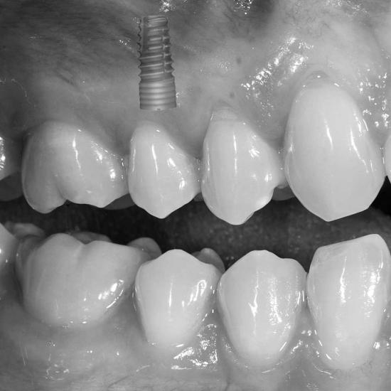 <mark>Implantologia</mark>