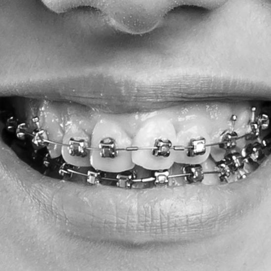 <mark>Ortodonzia</mark>